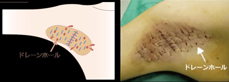 <ドレーンホールを作って順調な回復へ>術後に、微小な出血が皮膚の下で器質化する事により傷の回復が遅れてしまいます。当院では切開線の縫合をする前にドレーンホールを作成し、皮膚下で微小な出血が器質化する事を最小限に抑える工夫を行っております。※器質化・・・肉芽組織が取り囲むこと