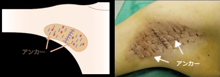<アンカーにより皮膚をしっかり固定>手術により剥離した皮膚がしっかりとくっつくように、術後アンカーといって皮膚が浮かないように糸で固定します。当院ではこのアンカーを通常の倍以上かけることで術後の辛い圧迫固定を最小限で済むようにしています。また、アンカーを多数かける事により皮膚がよれることを防ぎ、しっかり定着するようにしています。このような方法を行う為、当院では通常に比べ1.5倍の時間をかけて手術を行っております。