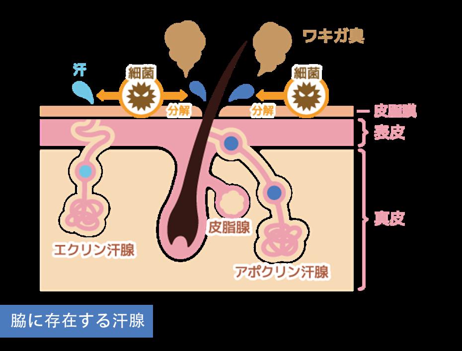 わきが治療(剪除法)の効果剪除法(せんじょほう)は、脇のしわに沿って4~5cm切開し、直視下で汗腺を切除していきます。その為、吸引法で取り切ることが出来なかったアポクリン腺とエクリン腺をしっかりと除去できる為、80~100%の完治が期待できます。