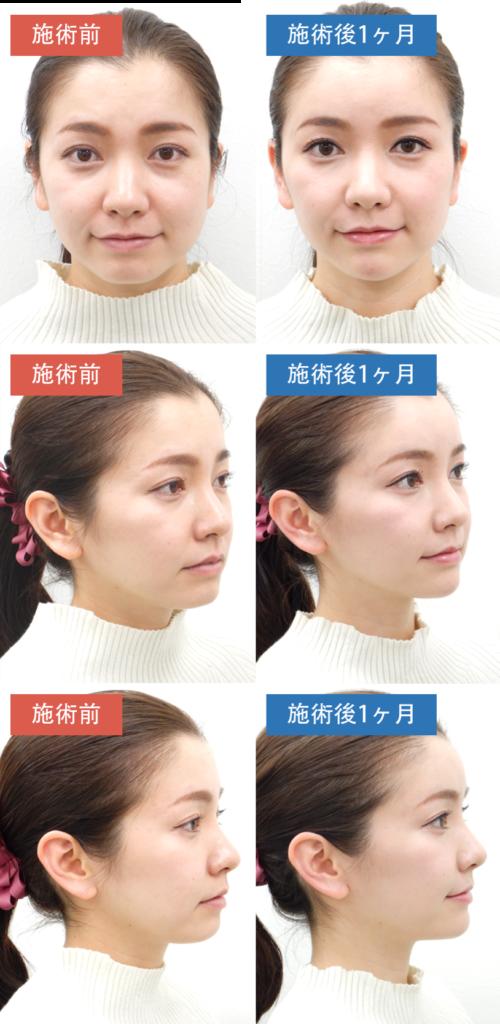 【20~30歳代 女性】お悩み:疲れて見える顔を自然に改善したい