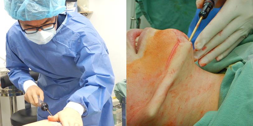 手術当日の流れ(頬・顎の吸引編)4