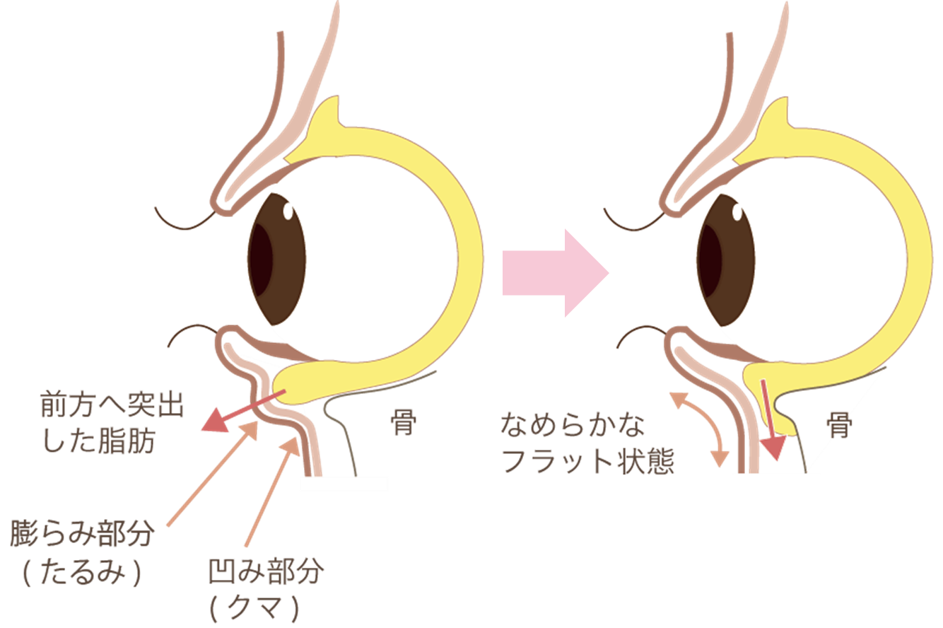 ハムラ法(目の下のたるみ取り)の効果加齢と共に目立ってきた目の下のたるみを、脂肪除去と同時に皮膚切除を行うことで、根本解決が可能な治療です