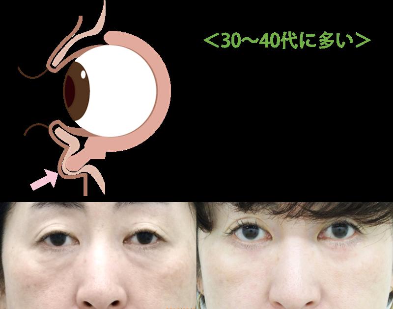 ハムラ法(目の下のたるみ取り)の適応例①~③ ①脂肪の突出により目の下がたるんで見えるケース重力の関係でまぶたの上の脂肪は奥に凹んでいきます。それとともに、目の上の脂肪は左図のように前方へ飛び出してきます。飛び出した脂肪のふくらみがたるみのように見えてしまいます。