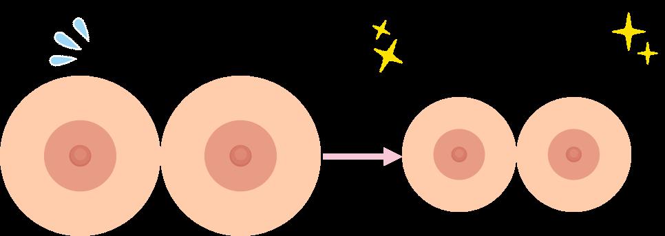 乳房縮小術の効果大きすぎるバストをバランスの良い大きさに!