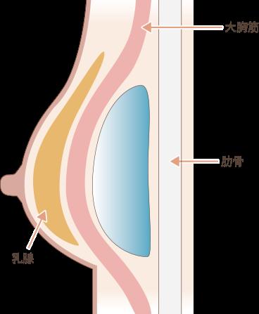 シリコンバッグ豊胸の手術方法3
