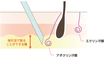 汗の原因となるエクリン腺は真皮にへばりついているため、吸引法ではアポクリン腺しか吸引できません。また、アポクリン腺もエクリン腺の様に、一部は真皮にへばりついているため100%の吸引は出来ず、臭いの減少は30%程となります。100%の効果を求める場合は、汗腺を直視して取り除く事が出来る剪除法がお奨めです。