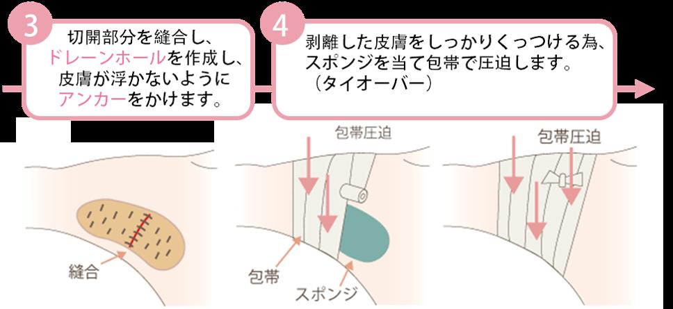 ③切開部分を縫合し、ドレーンホールを作成。皮膚が浮かないようにアンカーをかけます。④剥離した皮膚をしっかりくっつける為、スポンジを当てて包帯で圧迫します。(タイオーバー)