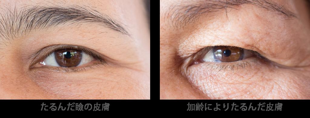 目の上のたるみ取りの効果たるんだ瞼の皮膚や加齢によりたるんだ皮膚を切除し、重たいまぶたをスッキリさせます