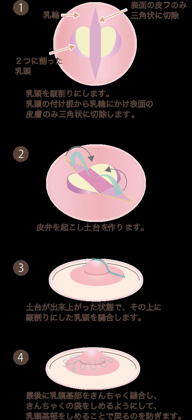 陥没乳頭の施術方法乳頭基部から乳輪部の皮膚を三角状に切除し、皮弁を持ち上げ反転させ乳頭の下に土台を作り陥没しないようにする方法です。