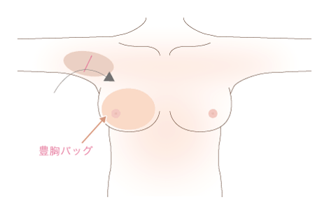 シリコンバッグ豊胸の手術方法1