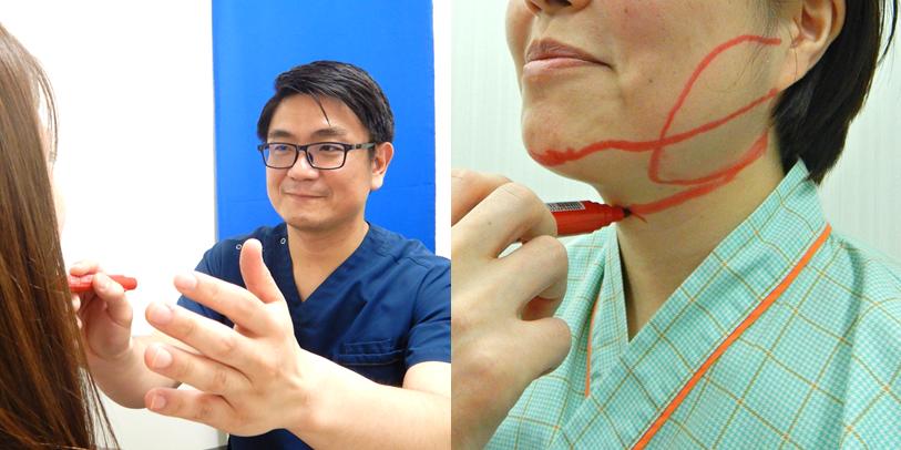 手術当日の流れ(頬・顎の吸引編)2