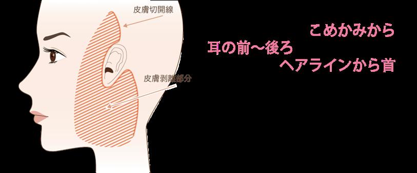 フェイスリフトの手術方法とポイント①切開線はヘアラインに沿うので目立ちにくいフェイスリフトの切開線は、こめかみから耳の前から後ろのヘアラインから首にかけて降りていきます。