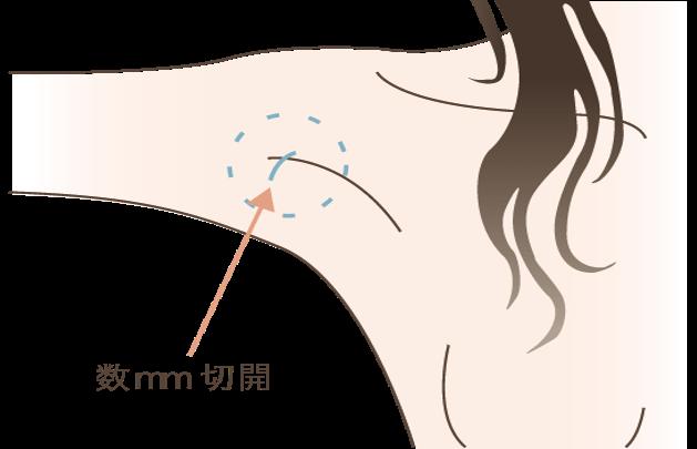 わきが治療(吸引法)の効果吸引法では皮膚に5㎜程の穴をあけ、そこからカニューレと呼ばれる吸引棒でアポクリン腺を吸引していきます。