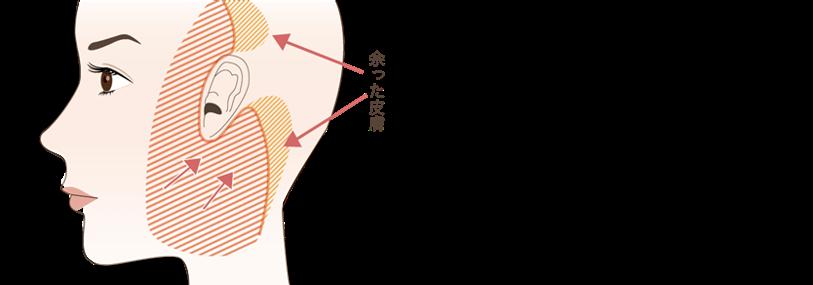 フェイスリフトの手術方法とポイント③余った皮膚の切除&縫合を行う剥離した皮膚とSMASを引き上げ、余った皮膚を切除し縫合します。